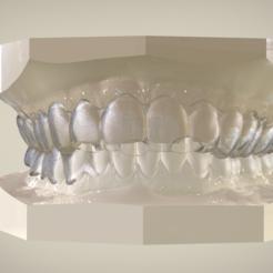 Modelos 3D Digital Tooth Positioner, LabMagic3DCAD