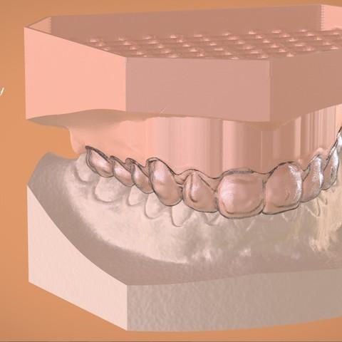 Download OBJ file Digital Bleaching Tray • 3D print object, LabMagic3DCAD