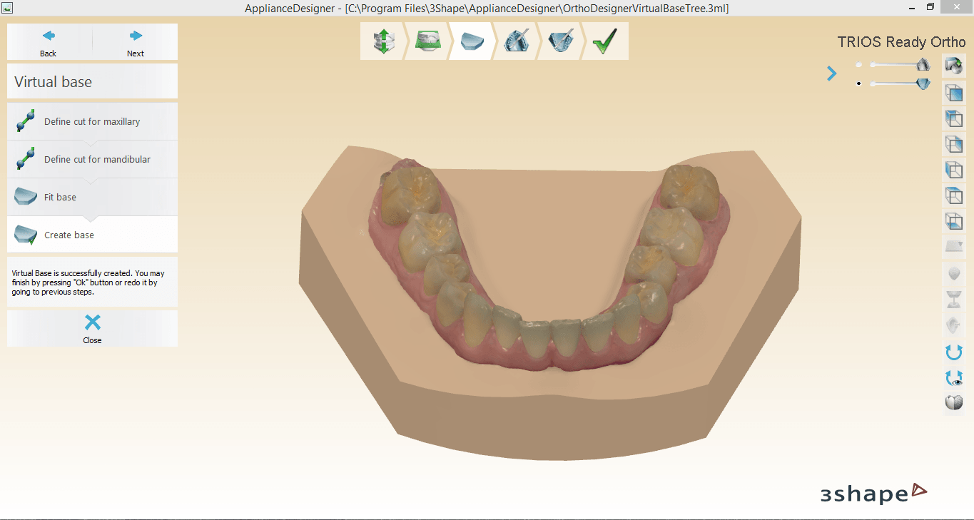 Screenshot_6.png Download OBJ file Digital Orthodontic Study Models with Virtual Bases • Design to 3D print, LabMagic3DCAD