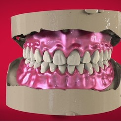 1.jpg Download OBJ file Digital Full Dentures for 3D Printing, Milling & Injection Molding • 3D printing design, LabMagic3DCAD