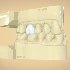 STL Digital Dental Quadrant  Model with a Full Contour Crown, LabMagic3DCAD