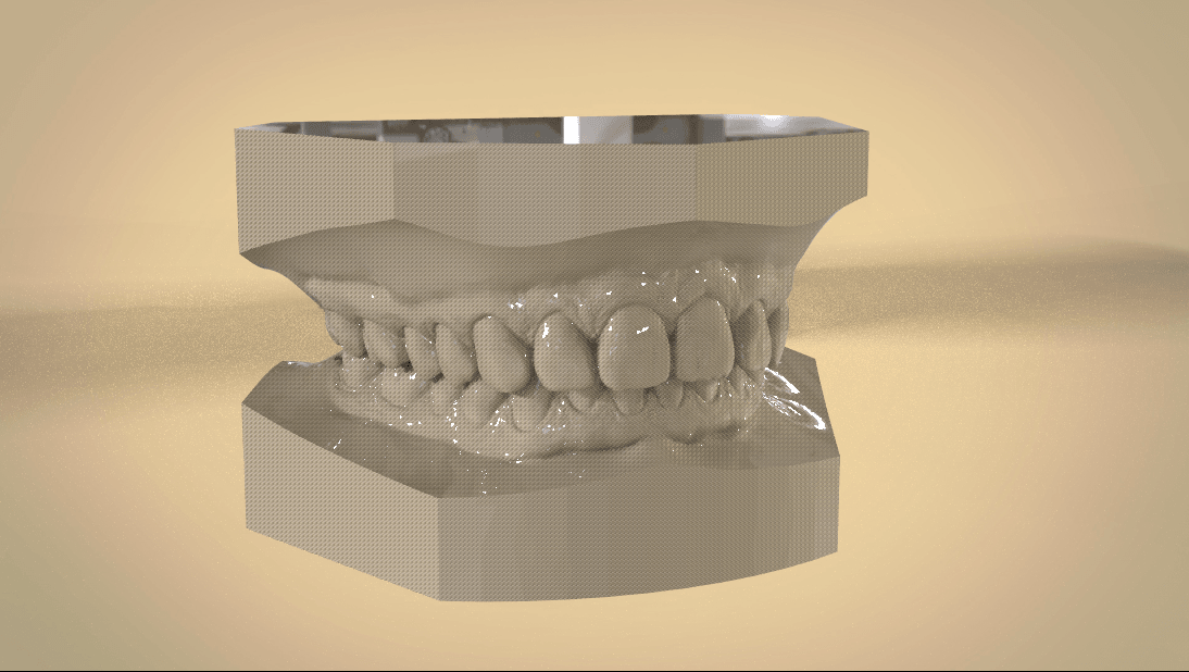 Screenshot_19.png Download OBJ file Digital Orthodontic Study Models with Virtual Bases • Design to 3D print, LabMagic3DCAD