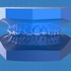 Screenshot_8.jpg Download OBJ file Digital Ortho Anterior Repositioner Splint • 3D printing design, LabMagic3DCAD