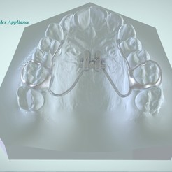 Modelos 3D Expansor palatino rápido digital, LabMagic3DCAD