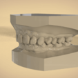Screenshot_20.png Download OBJ file Digital Orthodontic Study Models with Virtual Bases • Design to 3D print, LabMagic3DCAD
