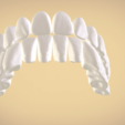 Screenshot_10.png Download OBJ file Full Dentures with Many Production Options  • 3D printing object, LabMagic3DCAD