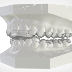 3D print model Digital Dental B Splints, LabMagic3DCAD