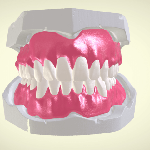 Screenshot_14.png Download OBJ file Full Dentures with Many Production Options  • 3D printing object, LabMagic3DCAD