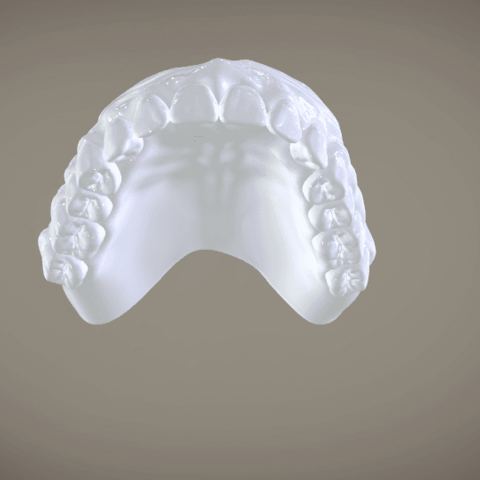 Screenshot_21.png Download OBJ file Full Dentures with Many Production Options  • 3D printing object, LabMagic3DCAD