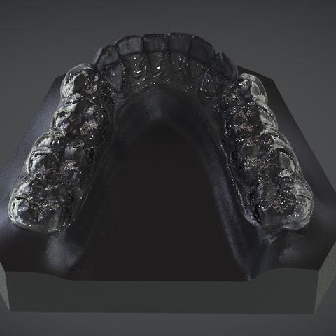 Download OBJ file Digital Mandibular Decompression Splint • 3D printer design, LabMagic3DCAD