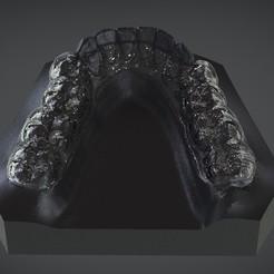 1.jpg Download OBJ file Digital Mandibular Decompression Splint • 3D printer design, LabMagic3DCAD
