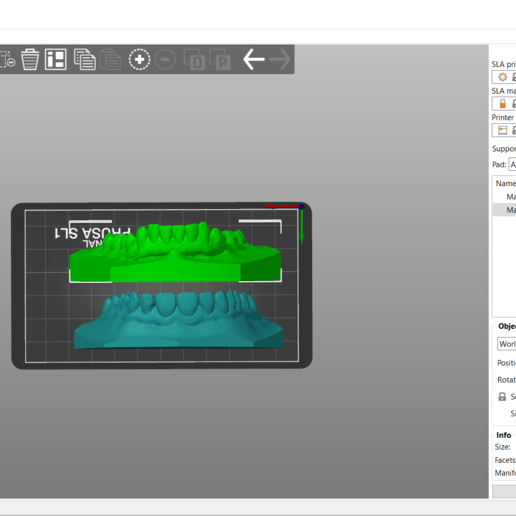 Screenshot_2.png Download OBJ file Digital Orthodontic Study Models with Virtual Bases • Design to 3D print, LabMagic3DCAD