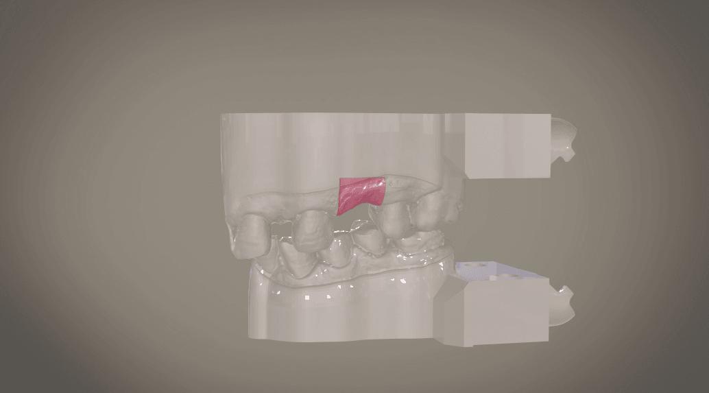 Screenshot_13.png Download OBJ file Digital Implant Model with Soft Tissue • 3D printing object, LabMagic3DCAD