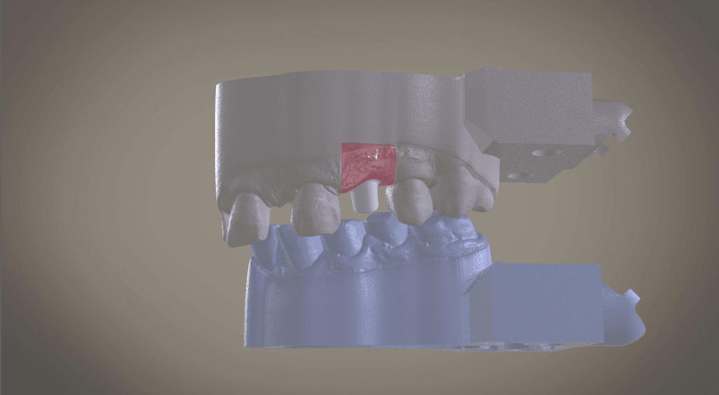 Screenshot_9.png Download OBJ file Digital Implant Model with Soft Tissue • 3D printing object, LabMagic3DCAD