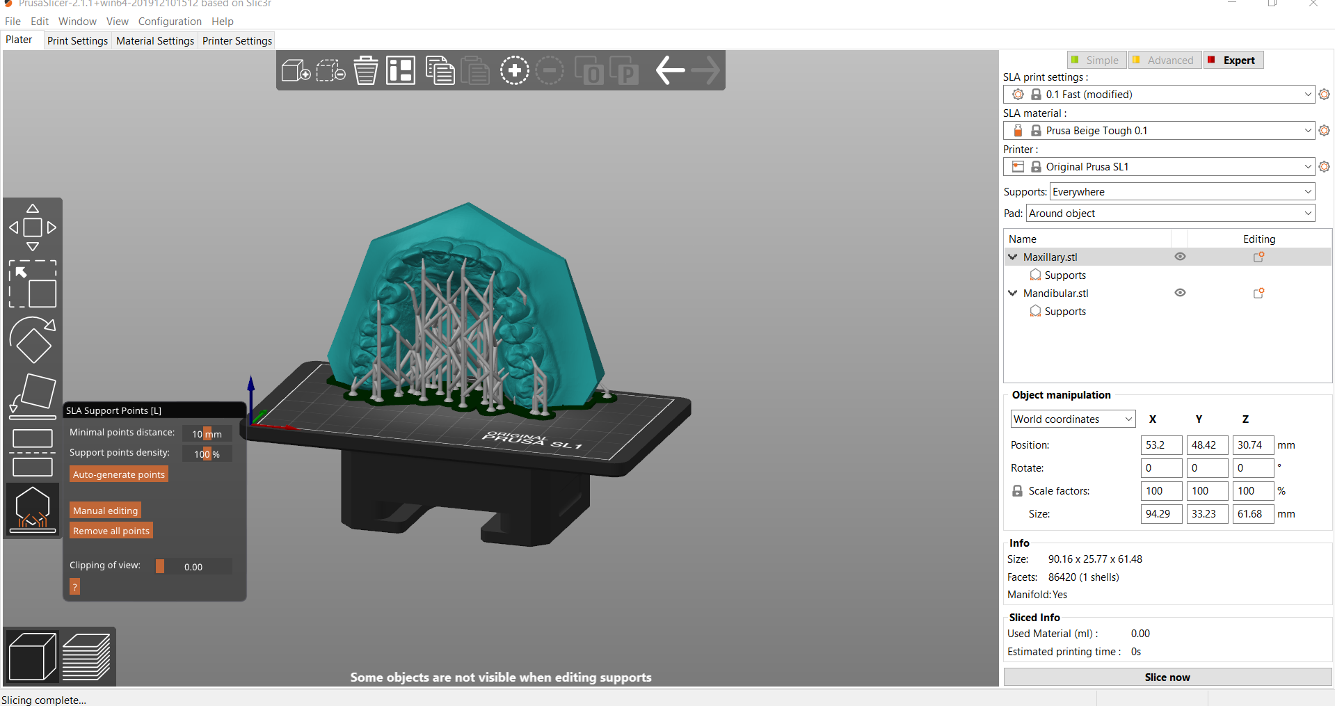 Screenshot_4.png Download OBJ file Digital Orthodontic Study Models with Virtual Bases • Design to 3D print, LabMagic3DCAD