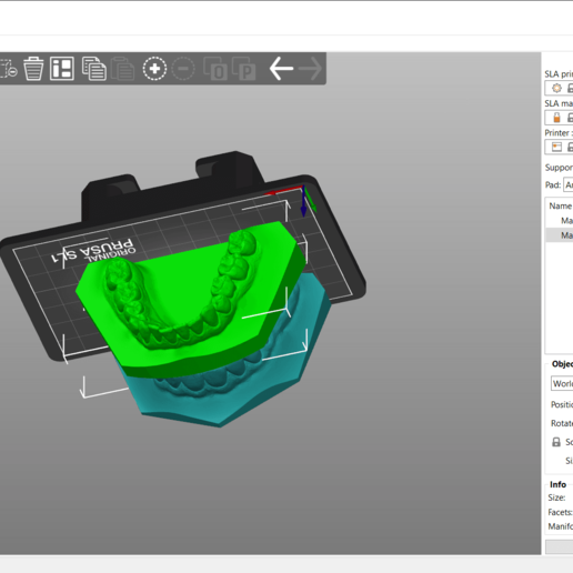Screenshot_3.png Download OBJ file Digital Orthodontic Study Models with Virtual Bases • Design to 3D print, LabMagic3DCAD