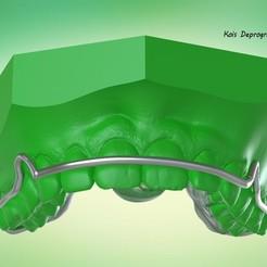 Snapshot_2017-7-30_14-19-34.jpg Download OBJ file Digital Ortho Kois Deprogrammer Appliance • 3D printing model, LabMagic3DCAD