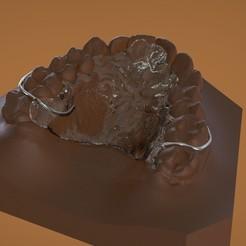 1.jpg Download OBJ file Digital Ortho DTI Deprogrammer Appliance • 3D printer model, LabMagic3DCAD