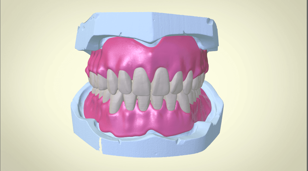 Screenshot_15.png Download OBJ file Full Dentures with Many Production Options  • 3D printing object, LabMagic3DCAD