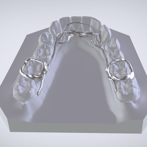 Download OBJ file Digital Dr.Williams's Ortho Appliance  • Object to 3D print, LabMagic3DCAD