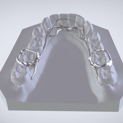 Digital Dr.Williams's Ortho Appliance  STL file, LabMagic3DCAD