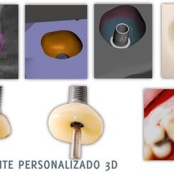 3D printer models SCAR CAP, BASE FOR GENERATING EMERGENCY PROFILE, PerezGiugovaz