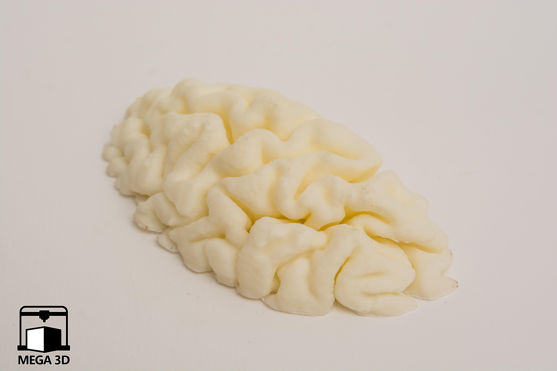 DSC_4170.jpg Download STL file mri brain • Model to 3D print, Medhat