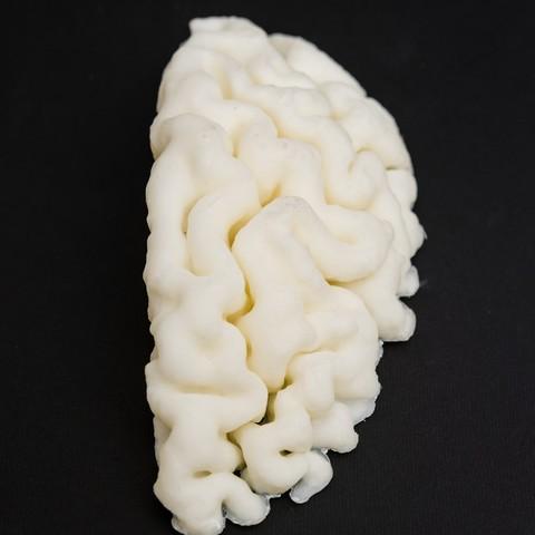 DSC_4224.jpg Download STL file mri brain • Model to 3D print, Medhat