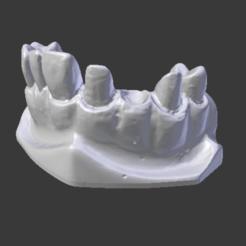 3D print model Dental model prosthesis, Spyn3D