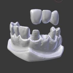 Download STL file Dental model prosthesis, Spyn3D
