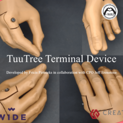 Download free 3D printer model TuuTree Terminal device - Prosthetic, Fricis