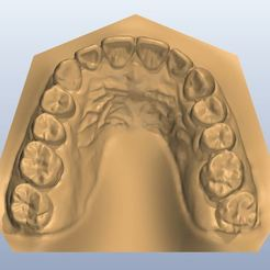 STL file dental,teeth,tooth,mouth, taesunlee