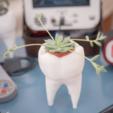 3D print model Tooth vase , happens