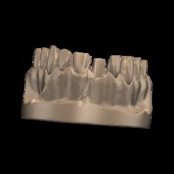 Télécharger fichier impression 3D Couronne de la mâchoire supérieure$vneer, silverheart9505
