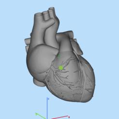 QQ图片20190925132416.png Download STL file heart • 3D printing template, DesignerWinterson