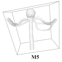 Download free STL file Saccular Aneurysm M5 • 3D print model, mariyapravdivtseva