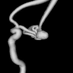 Pat_2_model.png Download free STL file ICA aneurysm • 3D printer model, mariyapravdivtseva