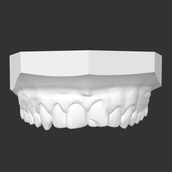 Capture d'écran 21.png Télécharger fichier STL teeth, dent, dental , denti , bocca , Zahn,  • Modèle imprimable en 3D, joristrial