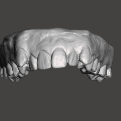 2.png Download STL file Upper teeth scan. Disalignment. • 3D printable object, Whitesprite