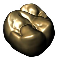 Upper 6 flat oblique view1.PNG Download free STL file Maxillary Molar 1 • 3D printing design, husseinhuzam3