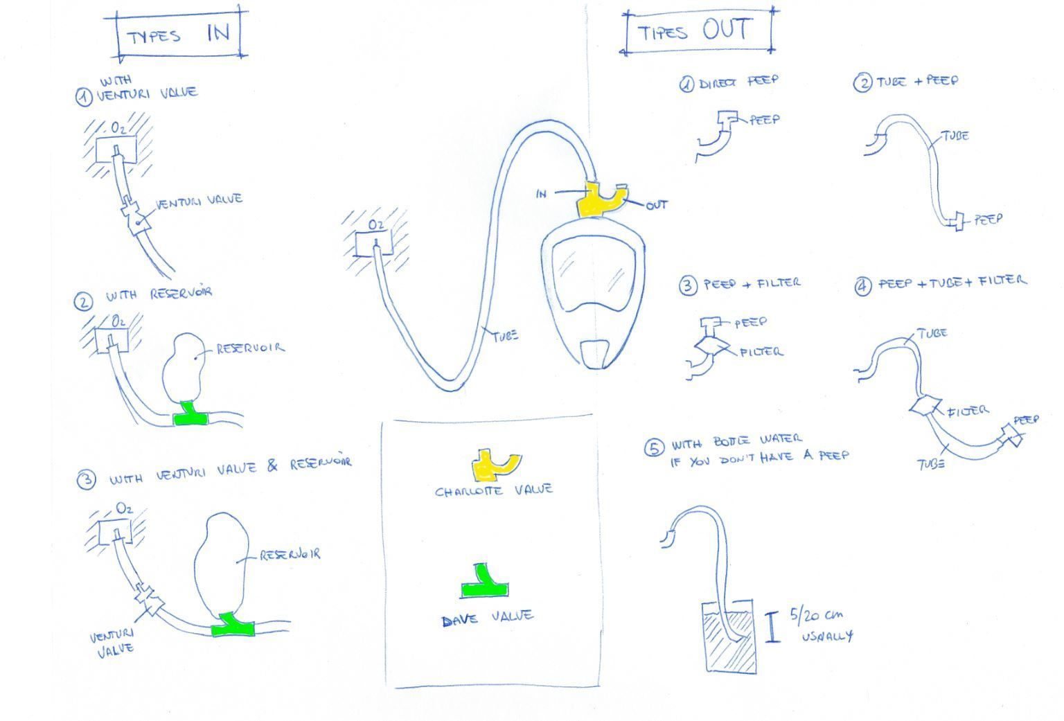 varianti.jpg Download free STL file EASY COVID 19 - Emergency mask for hospital ventilators • 3D printing design, isinnova