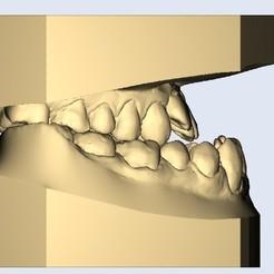 2.jpg Télécharger fichier STL prognathous adj - prognathe • Objet imprimable en 3D, e-dentic