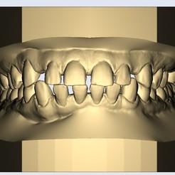 1.jpg Télécharger fichier STL dental model african big jaw • Modèle pour imprimante 3D, e-dentic