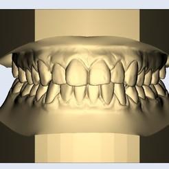 1.jpg Télécharger fichier STL dental model nice • Plan pour impression 3D, e-dentic