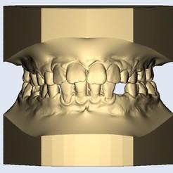 1.jpg Télécharger fichier STL dental model child narrow teeth • Modèle pour impression 3D, e-dentic