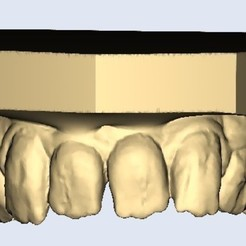 1.jpg Download STL file strange teeth • 3D printer design, e-dentic