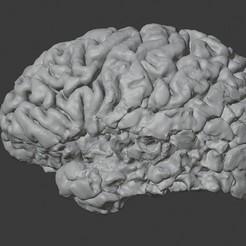brain_stroke_lh1.jpg Download STL file STROKE BRAIN MODEL • Design to 3D print, i3dbrain