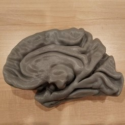 Download free 3D printer files Human Brain Model, i3dbrain