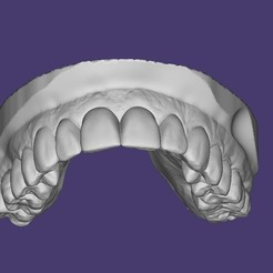 bandicam 2020-10-06 17-27-06-466.jpg Download STL file DENTAL MODEL UPPER, DENTAL MODEL UPPER • Template to 3D print, URZO
