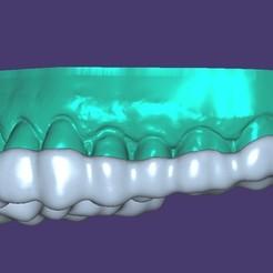 bandicam 2020-11-16 16-37-46-066.jpg Download STL file BITE SPLINT+MODEL, REST PLATE +MODEL • Template to 3D print, URZO